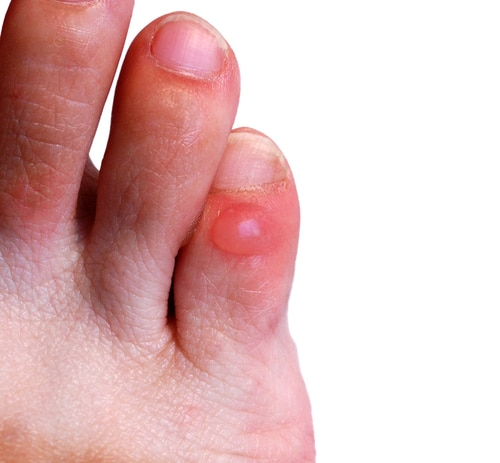Take care of your feet preparedness advice blog preparedness