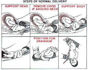 Childbirth When There is No Doctor