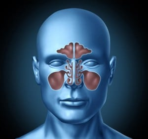 sinusitis and viral meningitis