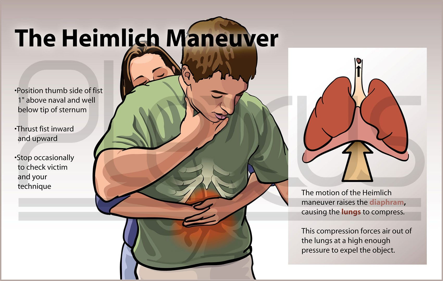 Learn The Heimlich Maneuver A Friend Of Mine Choked To Death