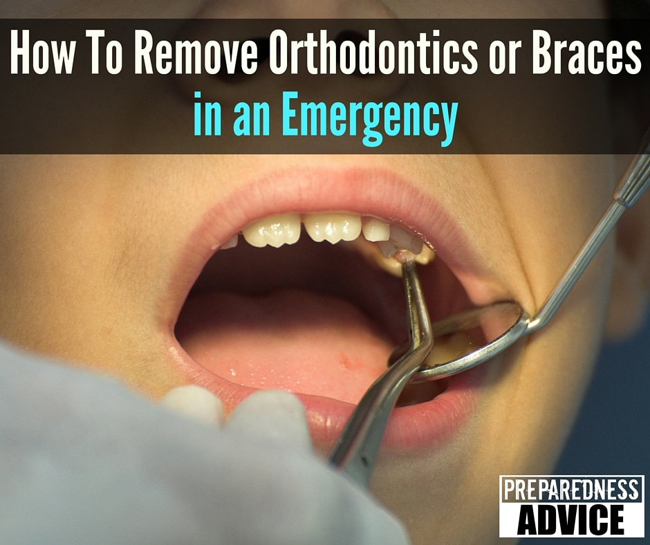 How To Remove Orthodontics or Braces in an Emergency Preparedness