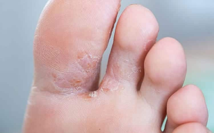 Can Fungal Infections be Treated by Antibiotics?